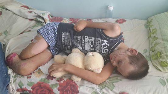 Картинки по запросу Донбасского мальчика без ног и руки,